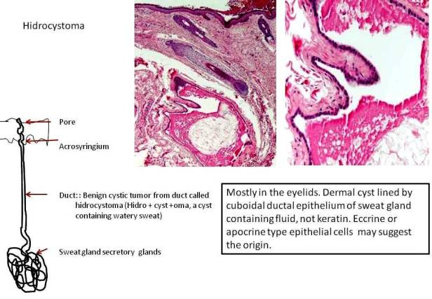 Quick dx. Hidrocystoma