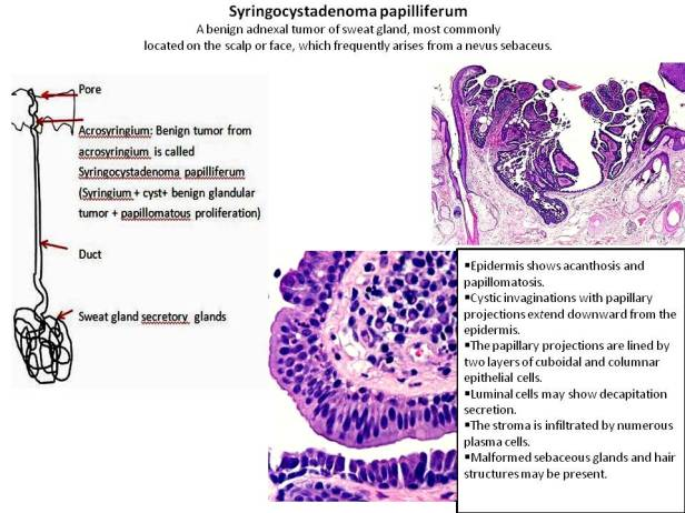 Quick dx. Syringocystadenoma papilliferum