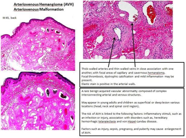 Quick dx. Arteriovenous hemangioma