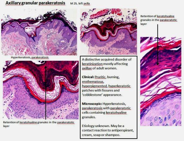 Quick dx. Axillary granular parakeratosis
