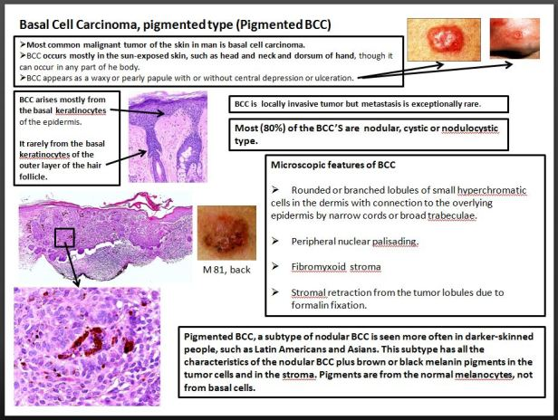 Quick dx. Basal cell carcinoma, pigmented type