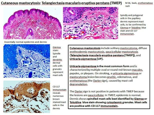 Quick dx. Cutaneous mastocytosis TMEP