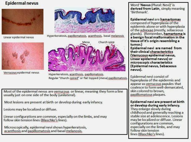 Quick dx. Epidermal nevus