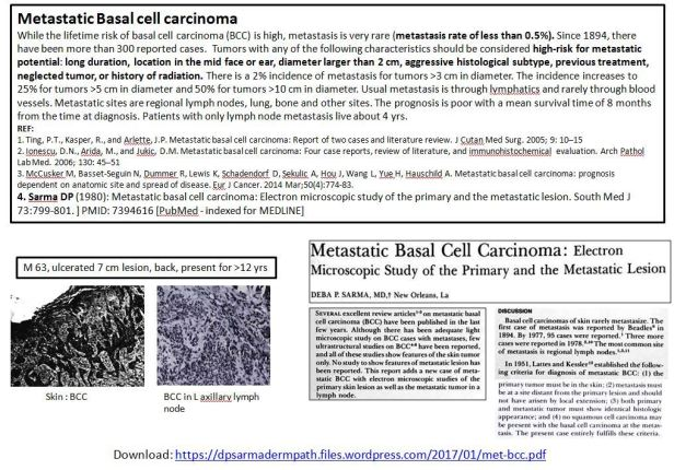Quick dx. Metastatic basal cell carcinoma