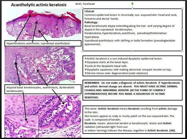 Quick dx. Acantholytic actinic keratosis