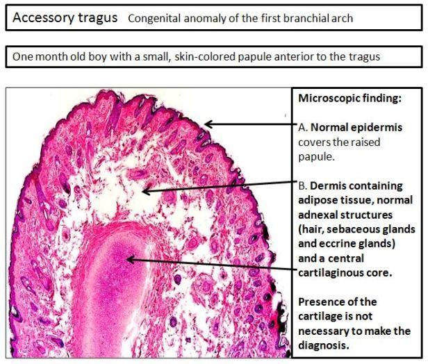 Quick dx. Accessory tragus