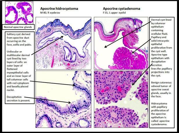 Quick dx. Apocrine hidrocystoma & Apocrine cystadenoma.JPG
