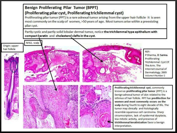Quick dx. Benign proliferating pilar tumor