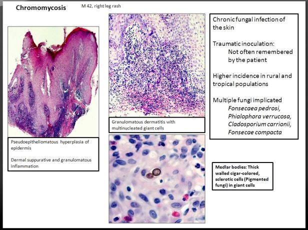Quick dx. Chromomycosis. M 42