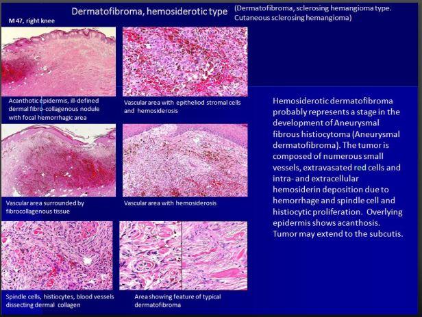 Quick dx. Dermatofibroma, hemosiderotic type