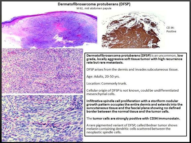 Quick dx. Dermatofibrosarcoma protuberans. DFSP.JPG