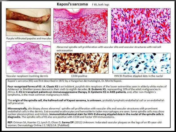 Quick dx. Kaposi's sarcoma