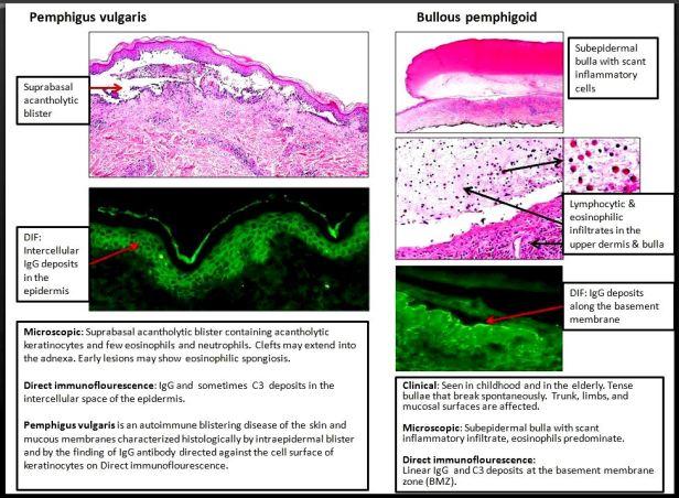 Quick dx. Pemphigus vulgaris & Bullous pemphigoid.JPG