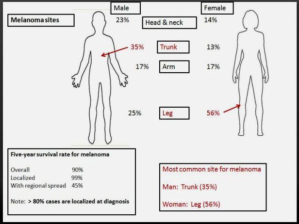 Quick dx. Melanoma sites