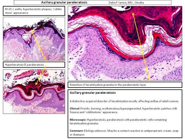 Axillary granular parakeratosis DS